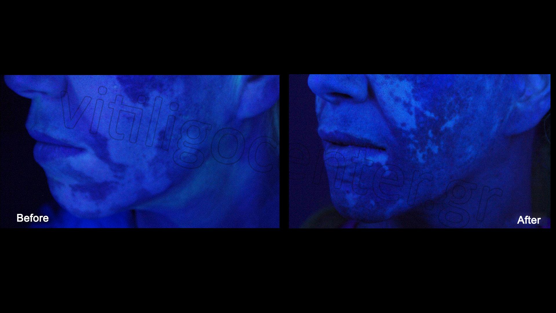 Cases of vitiligo on the face and neck | Vitiligo Center ... for wood lamp vitiligo  113cpg