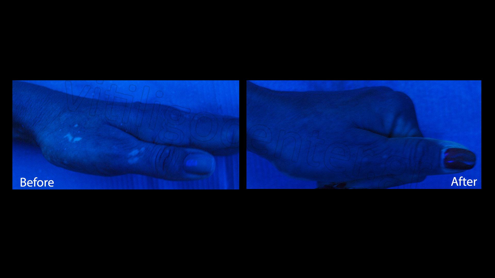 Medical cases of vitiligo | Vitiligo Center - Psychodermatologic ... for Wood Lamp Vitiligo  192sfw
