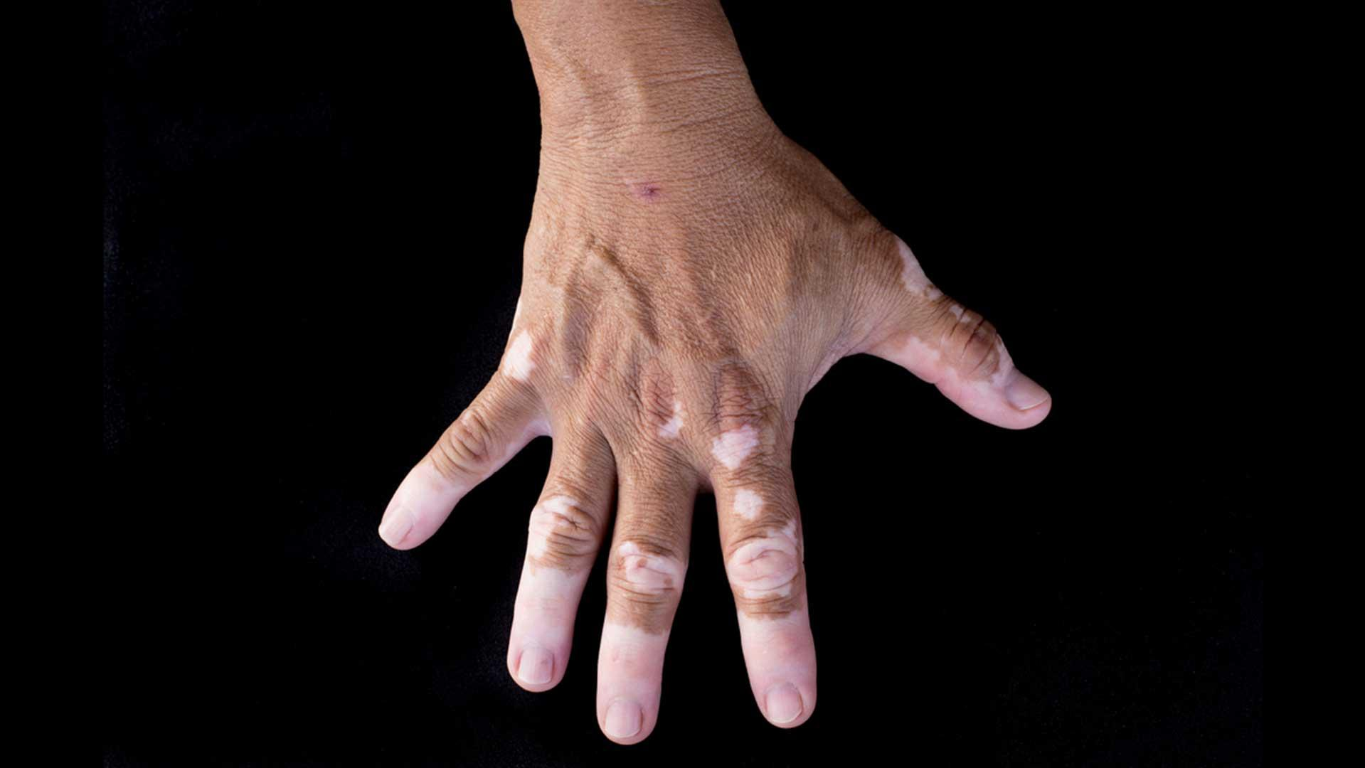 What are the symptoms of vitiligo?